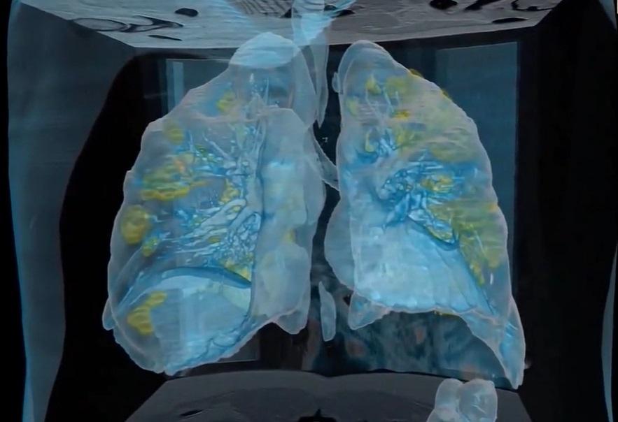 Melihat Virus Corona Memangsa Paru-paru Manusia Lewat VR