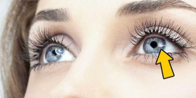 12 Tanda di Mata Tunjukan Kondisi Kesehatan Kamu
