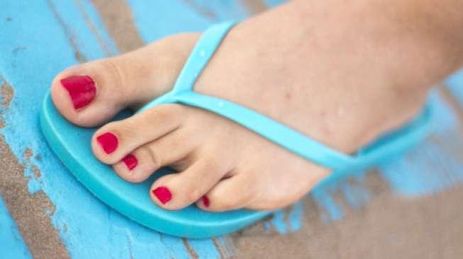 Tak Cuma Hak Tinggi, Sandal Jepit Juga Buruk bagi Kesehatan