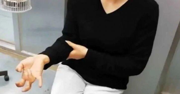 Kelamaan Main Ponsel, Tangan Wanita Ini 'Mati Jari'
