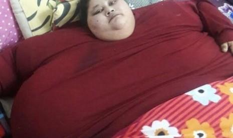 Wanita Ini Turunkan 323 Kilogram BB dalam Tiga Bulan