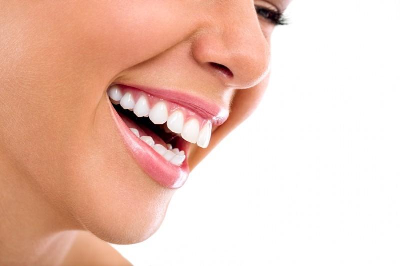 Ini Dia Cara Merapikan Gigi Tonggos Yang Mudah Dan Efektif