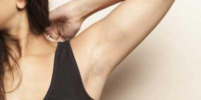 Ini 4 Risiko yang Mungkin Terjadi Akibat Hobi Mencabut Bulu Ketiak